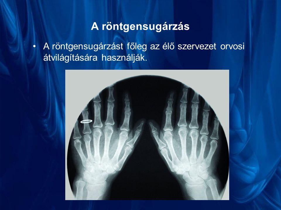 A röntgensugárzás A röntgensugárzást főleg az élő szervezet orvosi átvilágítására használják.