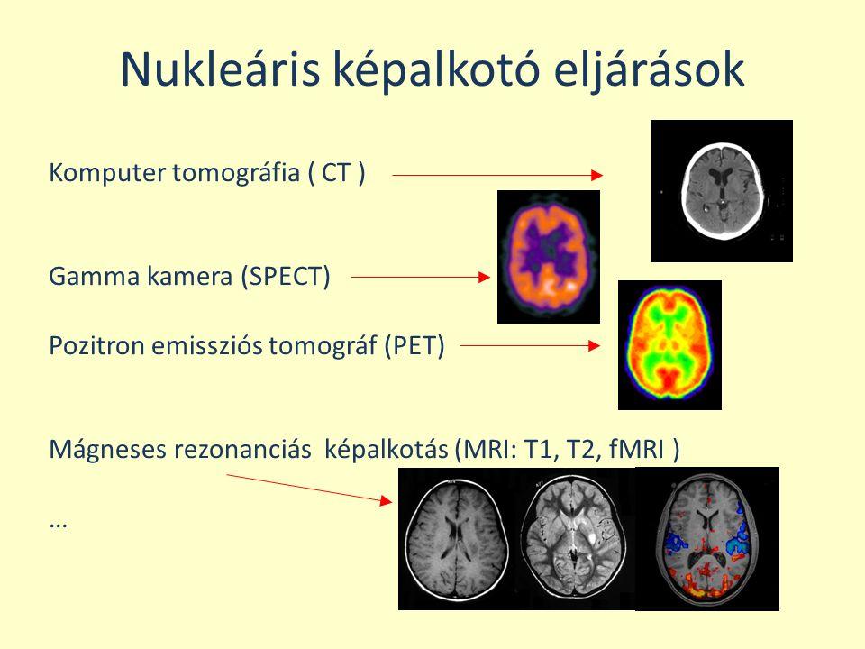Nukleáris képalkotó eljárások