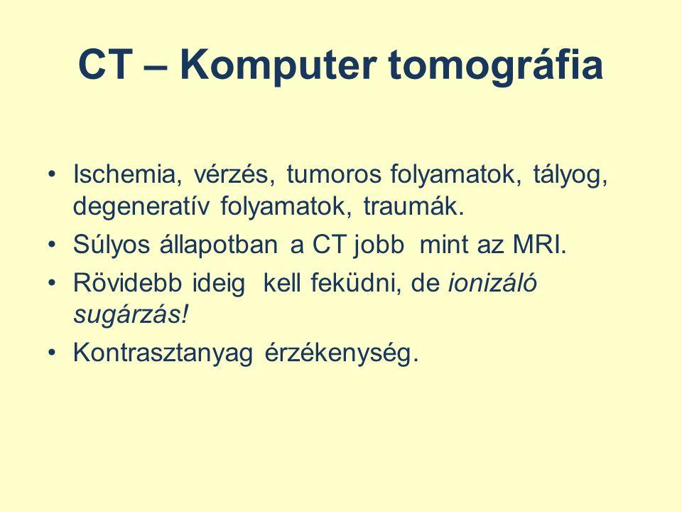 CT – Komputer tomográfia