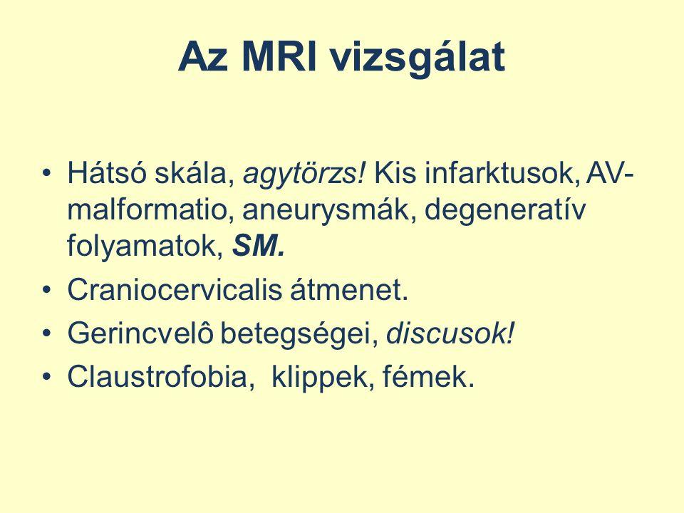 Az MRI vizsgálat Hátsó skála, agytörzs! Kis infarktusok, AV-malformatio, aneurysmák, degeneratív folyamatok, SM.