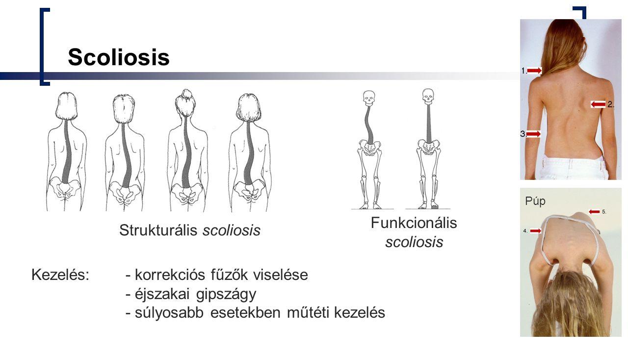 Strukturális scoliosis