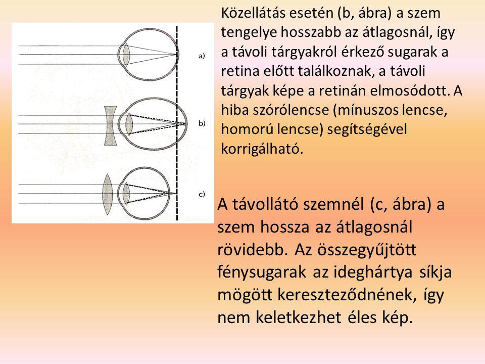 Közellátás esetén (b, ábra) a szem tengelye hosszabb az átlagosnál, így a távoli tárgyakról érkező sugarak a retina előtt találkoznak, a távoli tárgyak képe a retinán elmosódott. A hiba szórólencse (mínuszos lencse, homorú lencse) segítségével korrigálható.