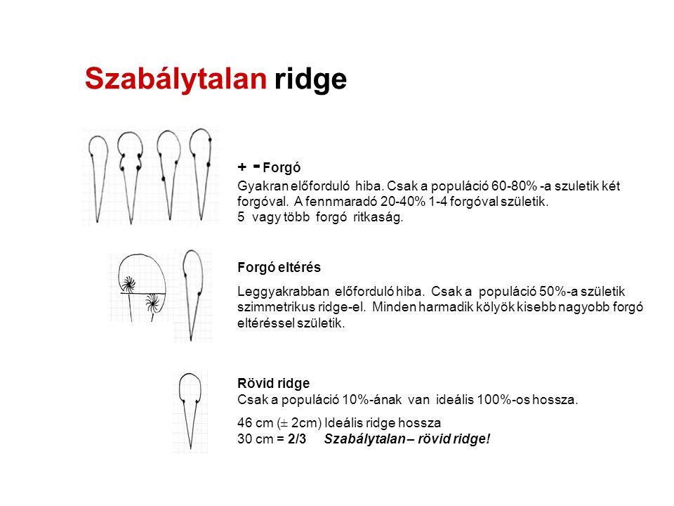Szabálytalan ridge