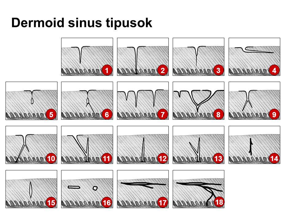 Dermoid sinus tipusok 1 2 3 4 5 6 7 8 9 10 11 12 13 14 15 16 17 18