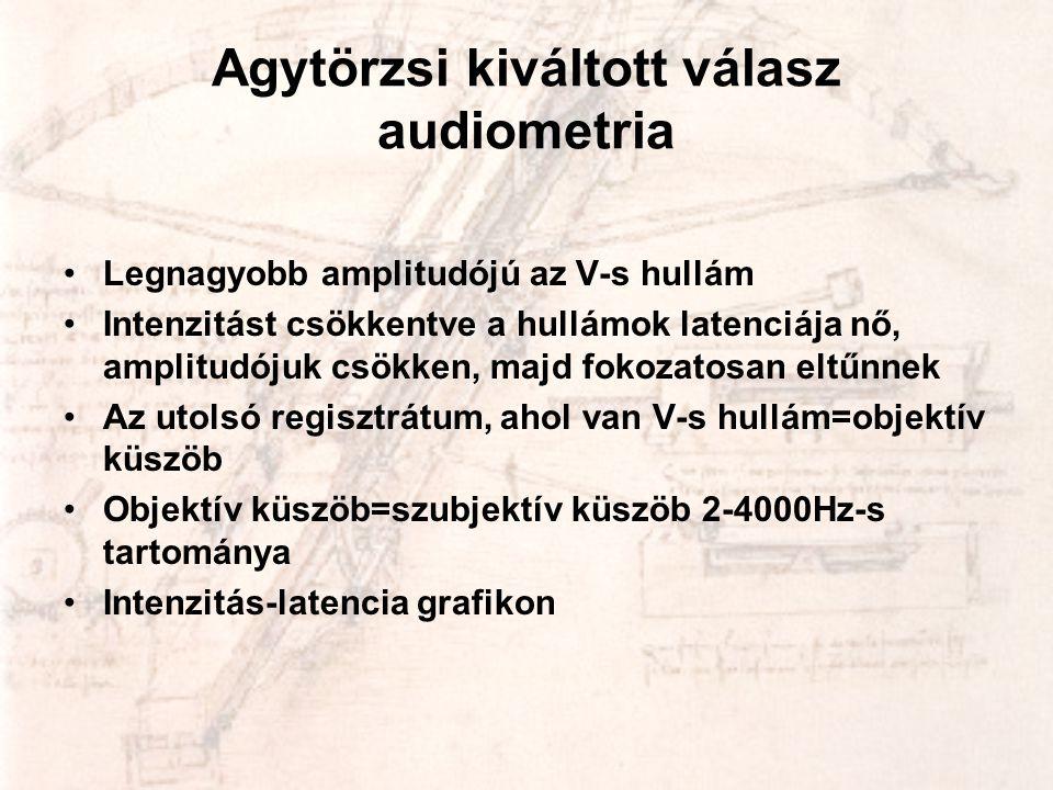 Agytörzsi kiváltott válasz audiometria