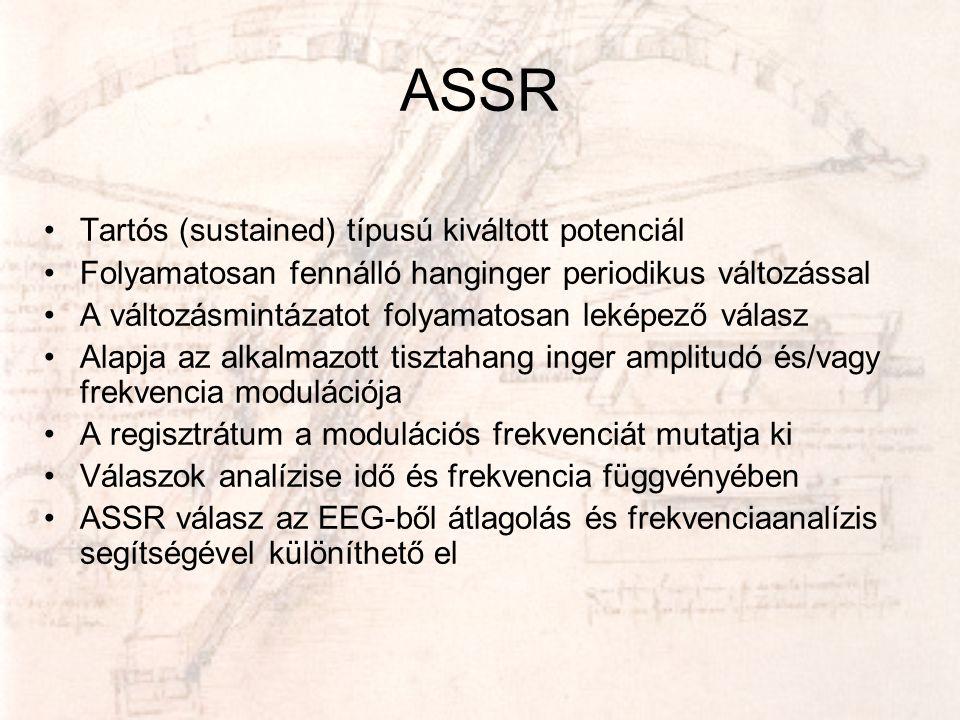 ASSR Tartós (sustained) típusú kiváltott potenciál