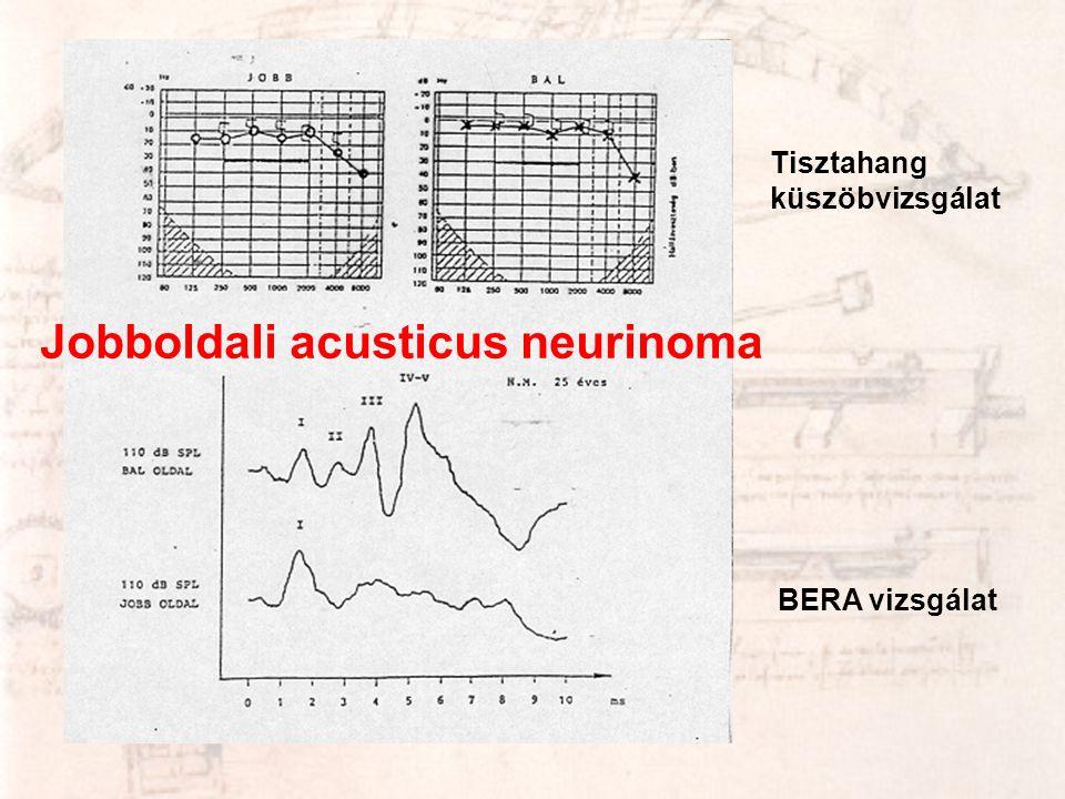 Jobboldali acusticus neurinoma