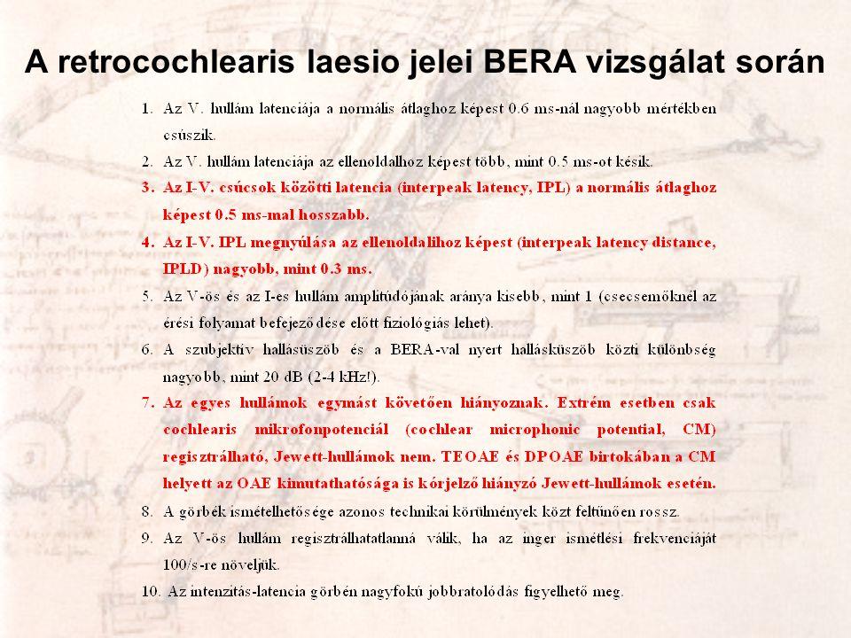 A retrocochlearis laesio jelei BERA vizsgálat során