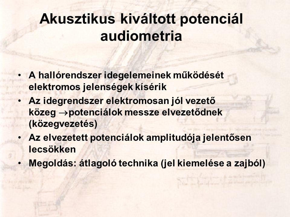 Akusztikus kiváltott potenciál audiometria