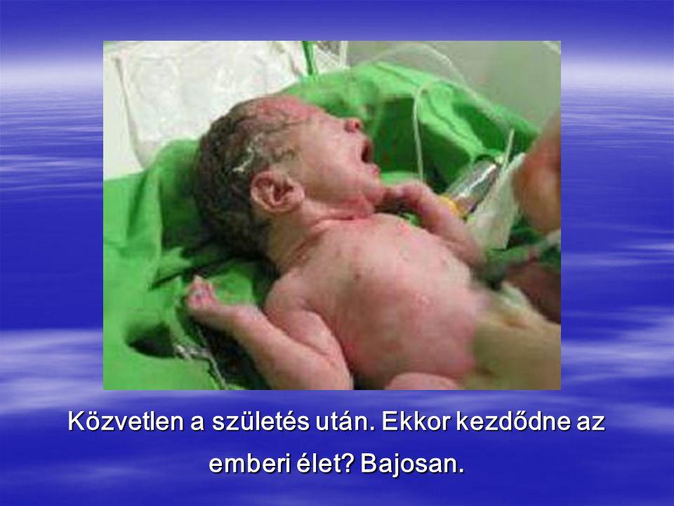 Közvetlen a születés után. Ekkor kezdődne az emberi élet Bajosan.