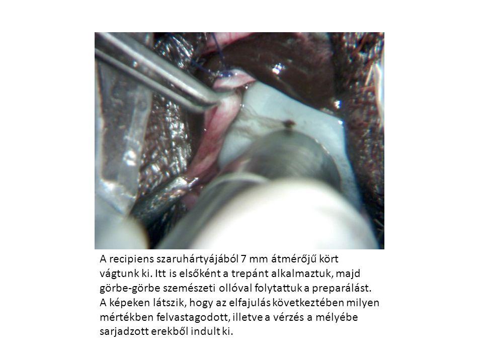 A recipiens szaruhártyájából 7 mm átmérőjű kört vágtunk ki