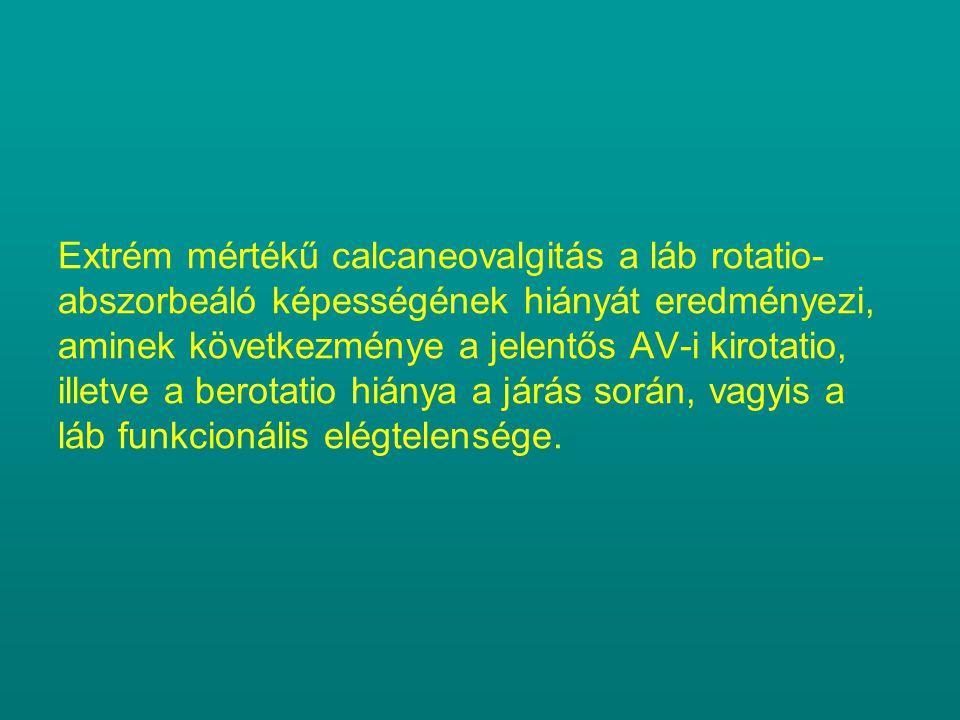 Extrém mértékű calcaneovalgitás a láb rotatio-abszorbeáló képességének hiányát eredményezi, aminek következménye a jelentős AV-i kirotatio, illetve a berotatio hiánya a járás során, vagyis a láb funkcionális elégtelensége.