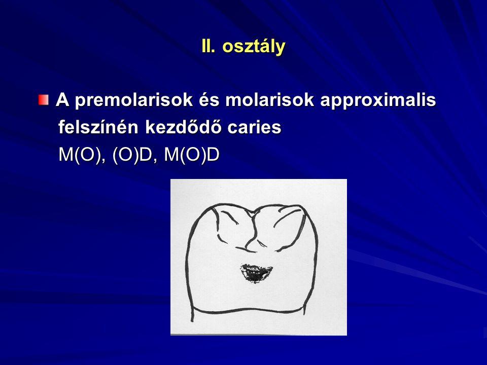 II. osztály A premolarisok és molarisok approximalis felszínén kezdődő caries M(O), (O)D, M(O)D