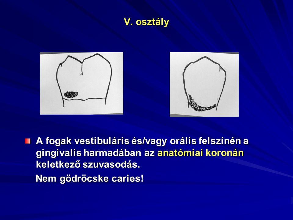 V. osztály A fogak vestibuláris és/vagy orális felszínén a gingivalis harmadában az anatómiai koronán keletkező szuvasodás.