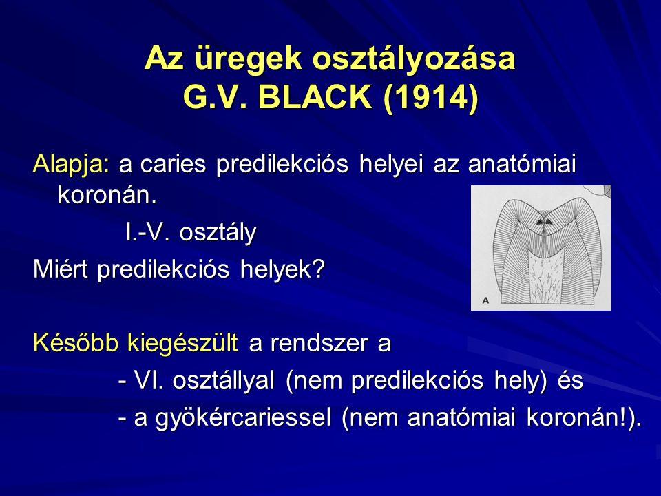 Az üregek osztályozása G.V. BLACK (1914)