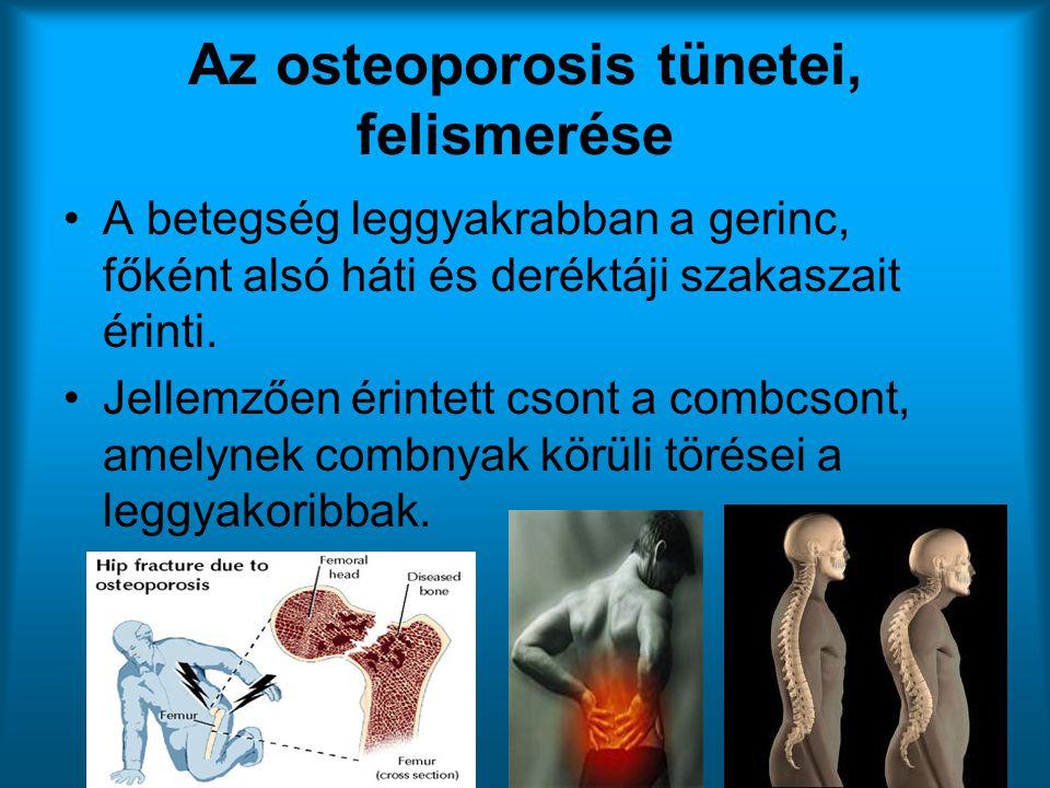 Az osteoporosis tünetei, felismerése