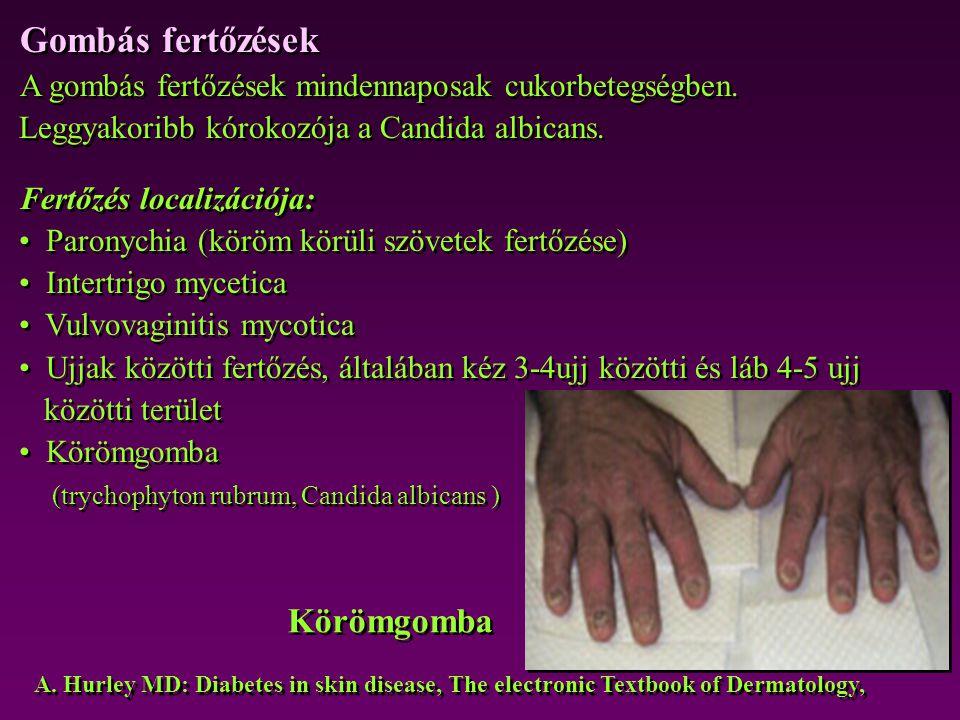 Gombás fertőzések Körömgomba