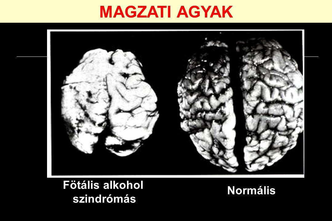 MAGZATI AGYAK Fötális alkohol szindrómás Normális