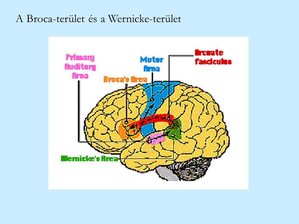 A Broca-terület és a Wernicke-terület