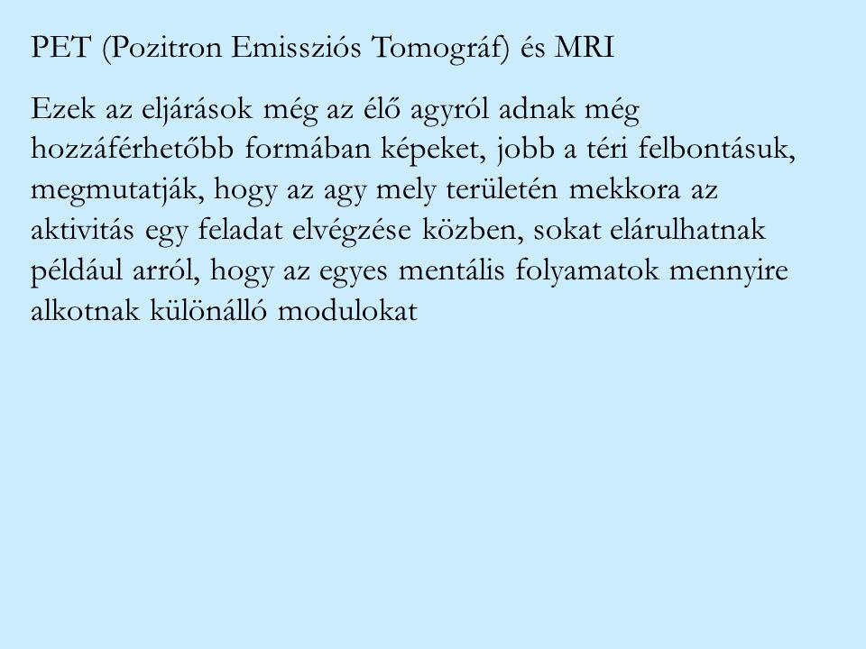 PET (Pozitron Emissziós Tomográf) és MRI