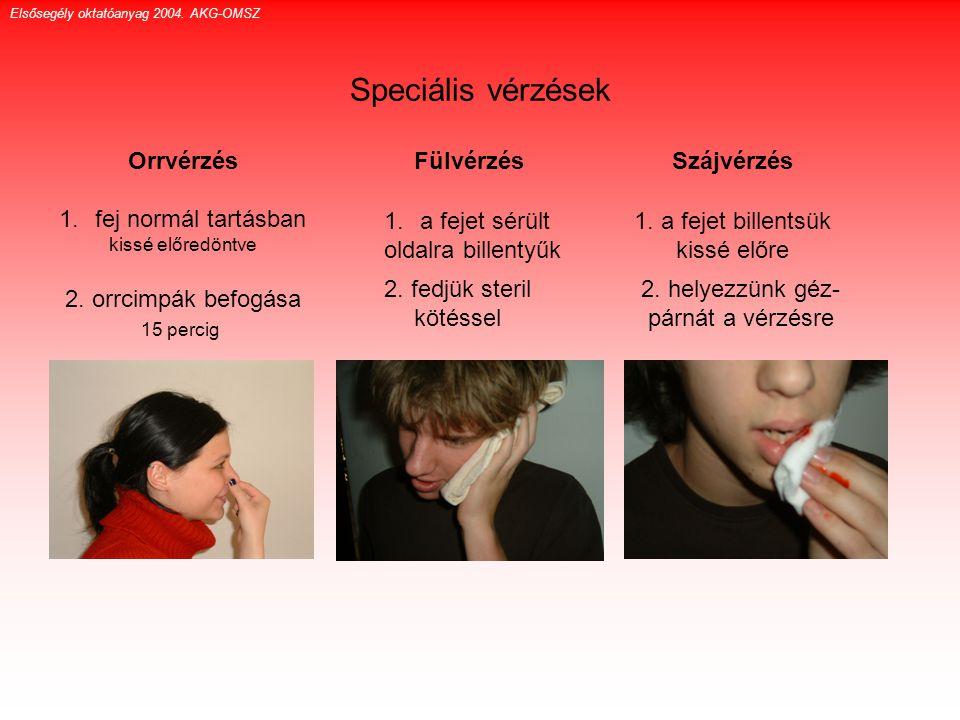 Speciális vérzések Orrvérzés fej normál tartásban