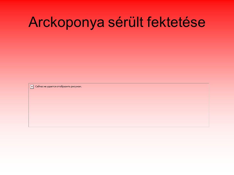 Arckoponya sérült fektetése