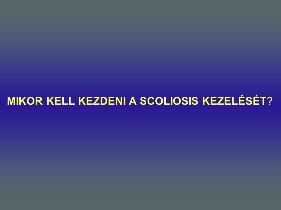 MIKOR KELL KEZDENI A SCOLIOSIS KEZELÉSÉT