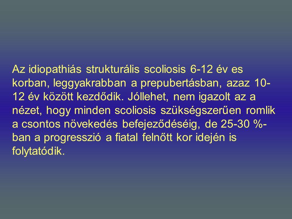 Az idiopathiás strukturális scoliosis 6-12 év es korban, leggyakrabban a prepubertásban, azaz 10-12 év között kezdődik.