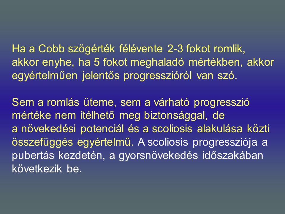 Ha a Cobb szögérték félévente 2-3 fokot romlik, akkor enyhe, ha 5 fokot meghaladó mértékben, akkor egyértelműen jelentős progresszióról van szó.