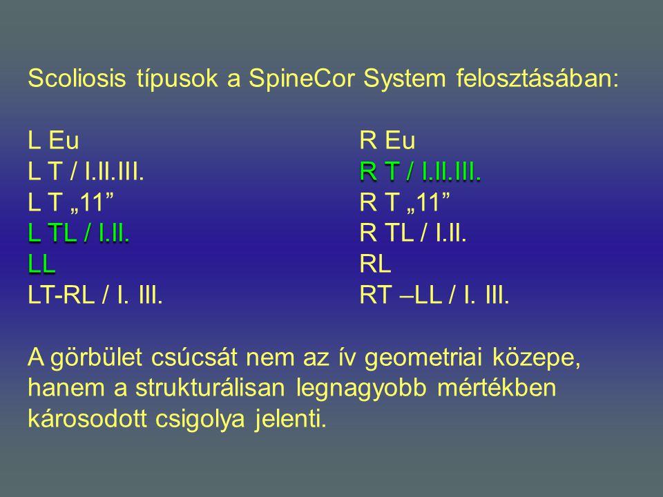 Scoliosis típusok a SpineCor System felosztásában: