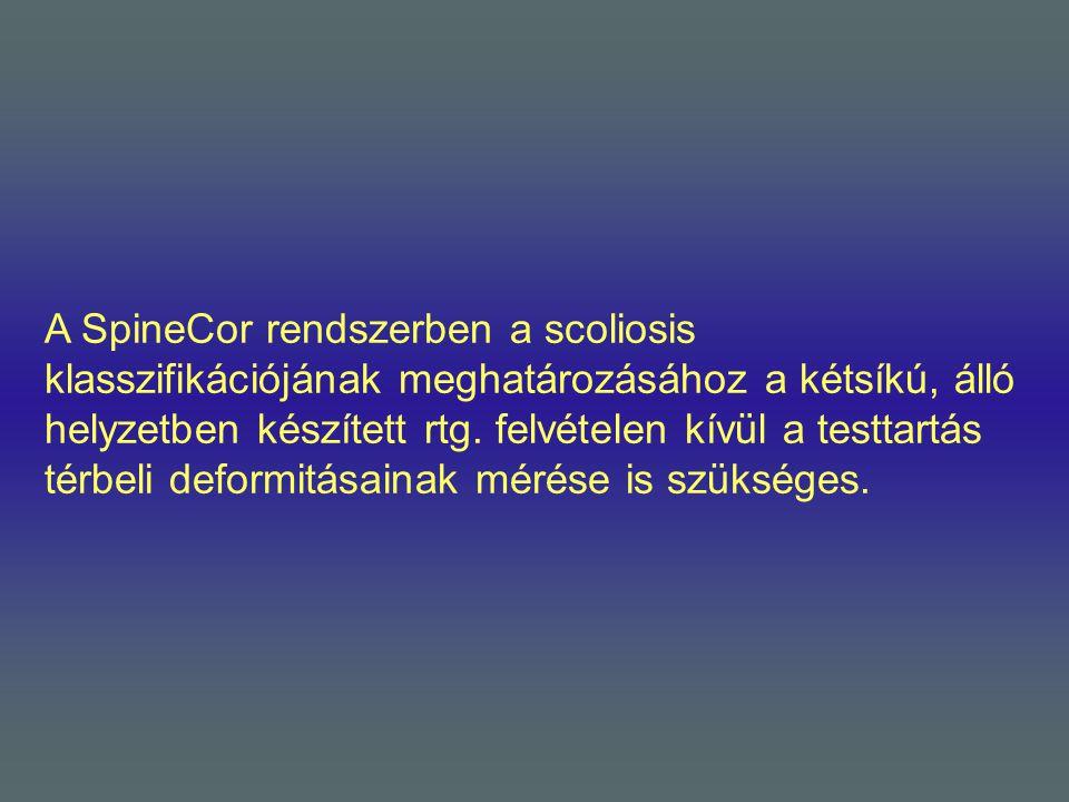 A SpineCor rendszerben a scoliosis klasszifikációjának meghatározásához a kétsíkú, álló helyzetben készített rtg.