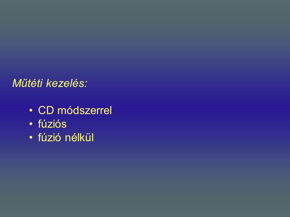 Műtéti kezelés: CD módszerrel fúziós fúzió nélkül