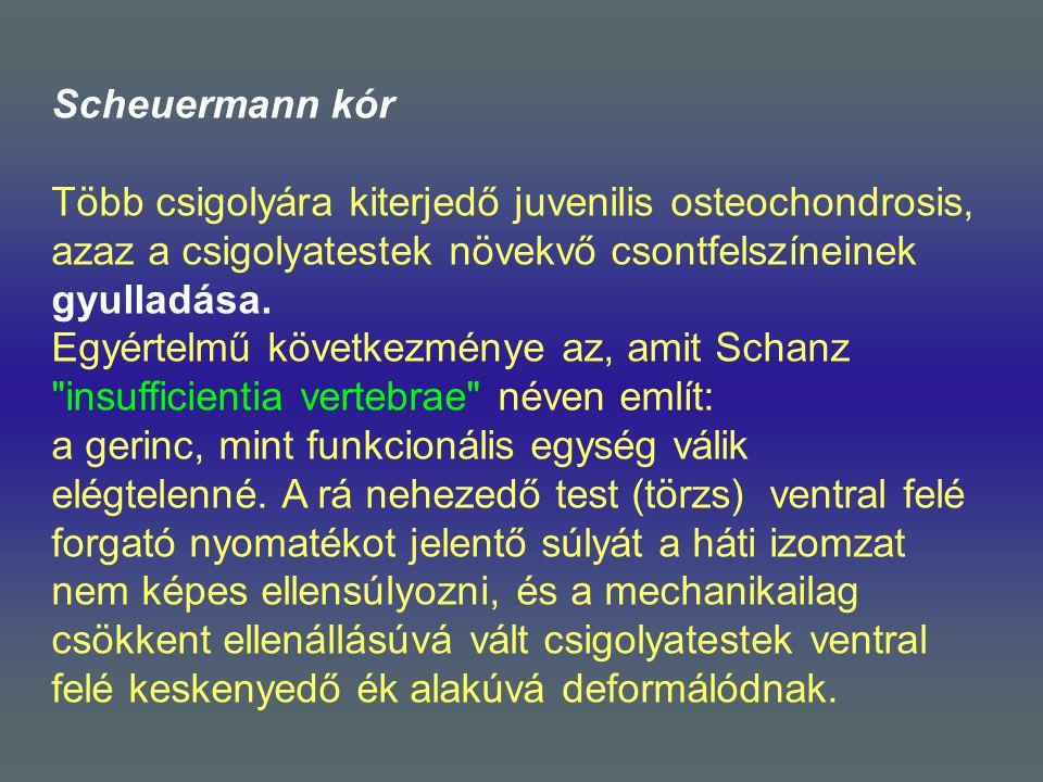 Scheuermann kór Több csigolyára kiterjedő juvenilis osteochondrosis, azaz a csigolyatestek növekvő csontfelszíneinek gyulladása.