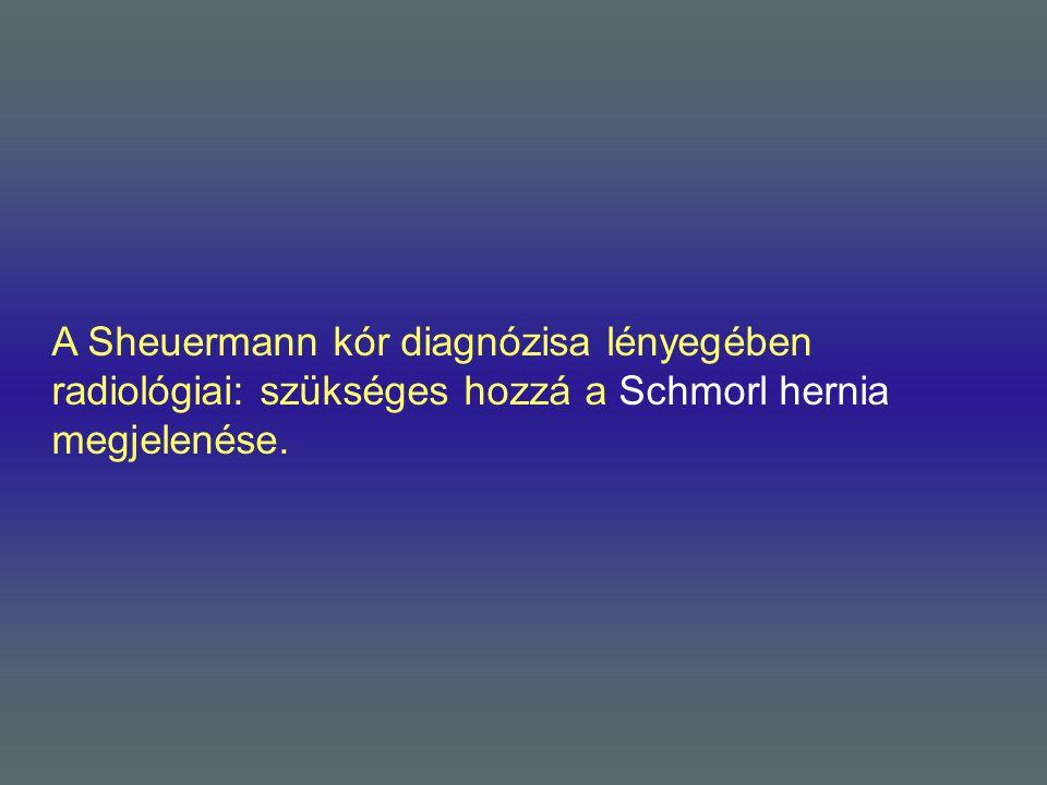 A Sheuermann kór diagnózisa lényegében radiológiai: szükséges hozzá a Schmorl hernia megjelenése.