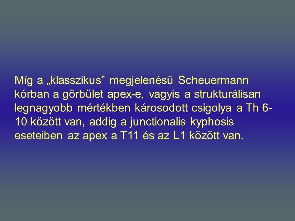 """Míg a """"klasszikus megjelenésű Scheuermann kórban a görbület apex-e, vagyis a strukturálisan legnagyobb mértékben károsodott csigolya a Th 6-10 között van, addig a junctionalis kyphosis eseteiben az apex a T11 és az L1 között van."""