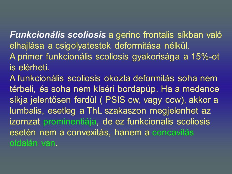Funkcionális scoliosis a gerinc frontalis síkban való elhajlása a csigolyatestek deformitása nélkül.