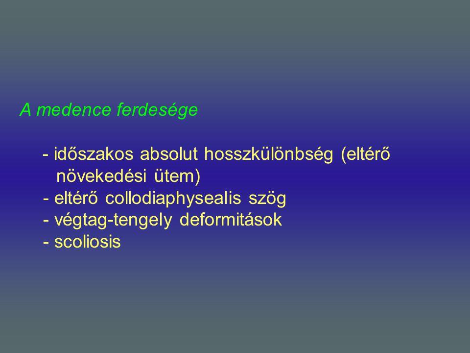 A medence ferdesége - időszakos absolut hosszkülönbség (eltérő növekedési ütem) - eltérő collodiaphysealis szög.
