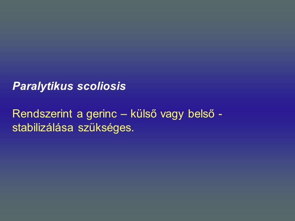 Paralytikus scoliosis