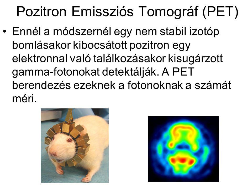 Pozitron Emissziós Tomográf (PET)