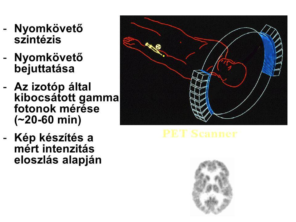 PET Imaging Overview Nyomkövető szintézis Nyomkövető bejuttatása