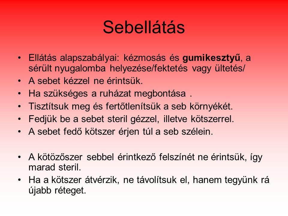 Sebellátás Ellátás alapszabályai: kézmosás és gumikesztyű, a sérült nyugalomba helyezése/fektetés vagy ültetés/