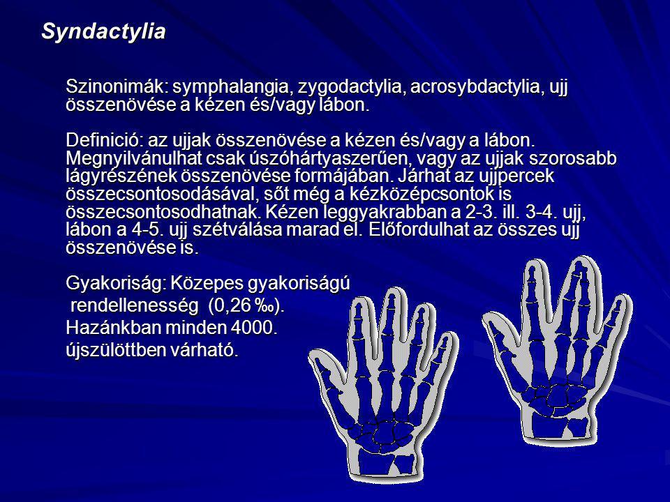Syndactylia Szinonimák: symphalangia, zygodactylia, acrosybdactylia, ujj összenövése a kézen és/vagy lábon. Definició: az ujjak összenövése a kézen és/vagy a lábon. Megnyilvánulhat csak úszóhártyaszerűen, vagy az ujjak szorosabb lágyrészének összenövése formájában. Járhat az ujjpercek összecsontosodásával, sőt még a kézközépcsontok is összecsontosodhatnak. Kézen leggyakrabban a 2-3. ill. 3-4. ujj, lábon a 4-5. ujj szétválása marad el. Előfordulhat az összes ujj összenövése is. Gyakoriság: Közepes gyakoriságú