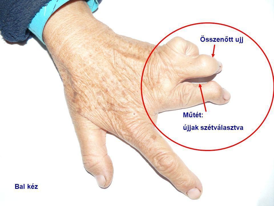 Összenőtt ujj Műtét: újjak szétválasztva Bal kéz