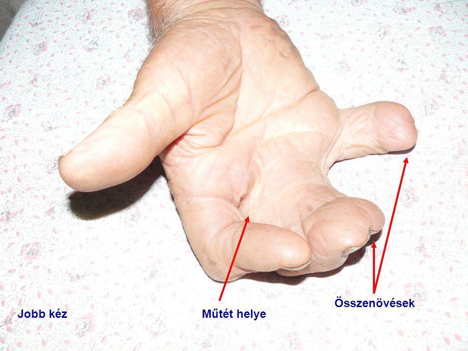 Összenövések Jobb kéz Műtét helye