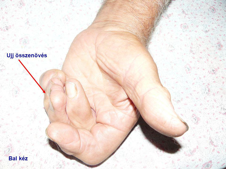Ujj összenövés Bal kéz