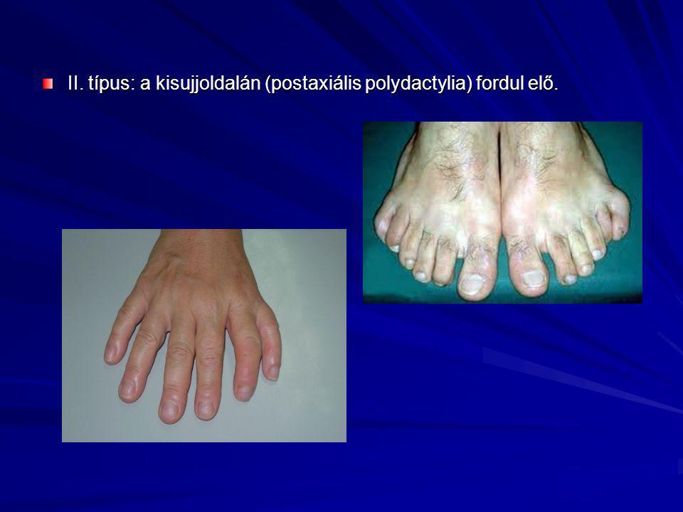 II. típus: a kisujjoldalán (postaxiális polydactylia) fordul elő.
