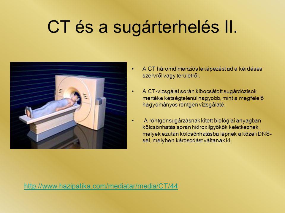 CT és a sugárterhelés II.
