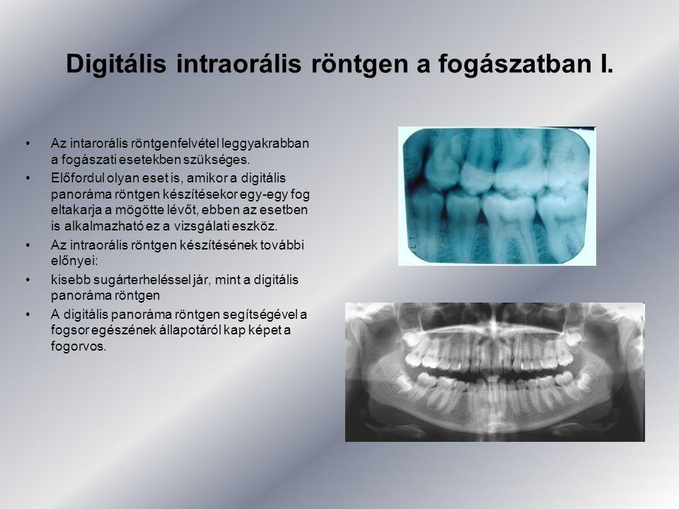 Digitális intraorális röntgen a fogászatban I.
