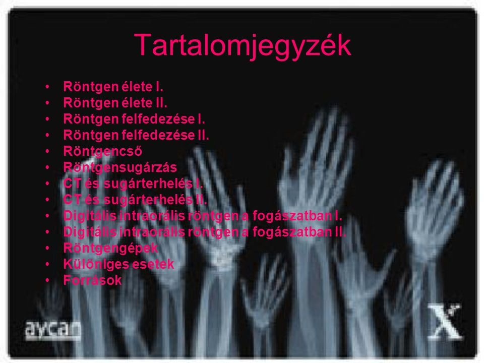 Tartalomjegyzék Röntgen élete I. Röntgen élete II.