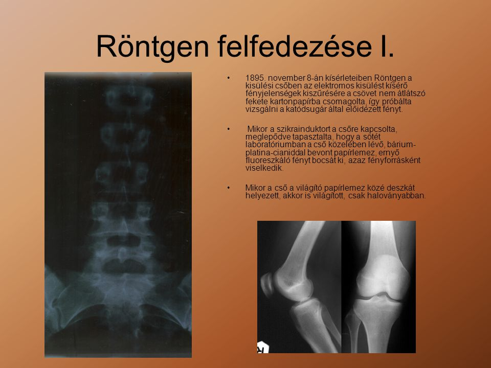Röntgen felfedezése I.